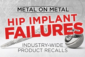 Cariati Law Toronto, Ontario Injury Lawyers Defective Products Metal on Metal Hip Implant Failures Product Recalls