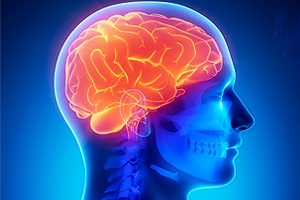Cariati Law Toronto, Ontario Injury Lawyers Traumatic Brain Injury Lawyers Brain Image