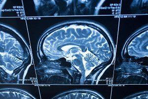 Cariati Law Toronto, Ontario Canada Injury Lawyers Brain Injury Law Firm