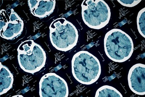 Cariati Law Toronto, Ontario Brain & Spinal Cord Injuries Lawyers